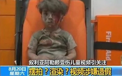 China state media considers images of injured Syrian boy are fake