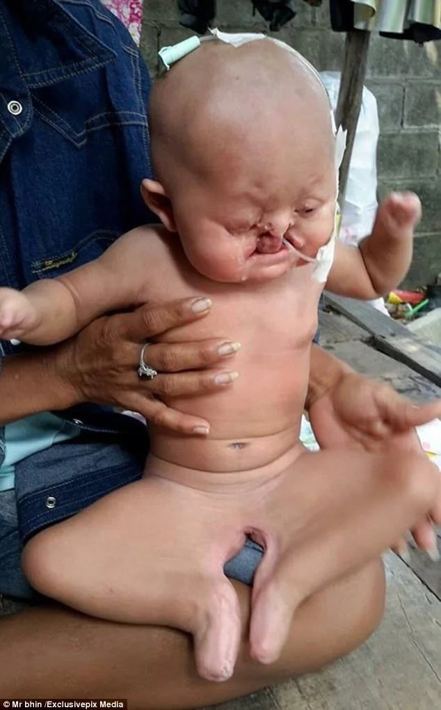 Doctors unable to determine gender of MERMAID baby who suffers from this rare deformity (photos)