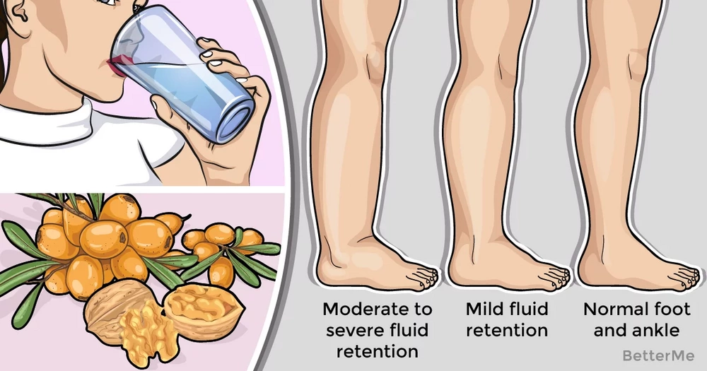 6 reasons that cause fluid retention in your body and how to avoid them
