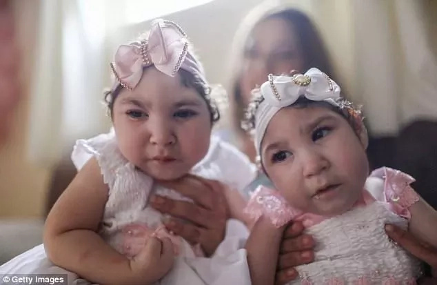 Twins born with microcephaly due to ZIKA celebrate first birthday (photos)