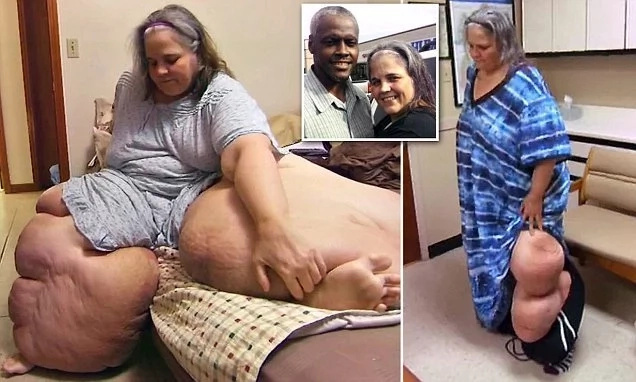 See food-obsessed 274kg woman who carries whopping 180kg in her giant legs (photos)