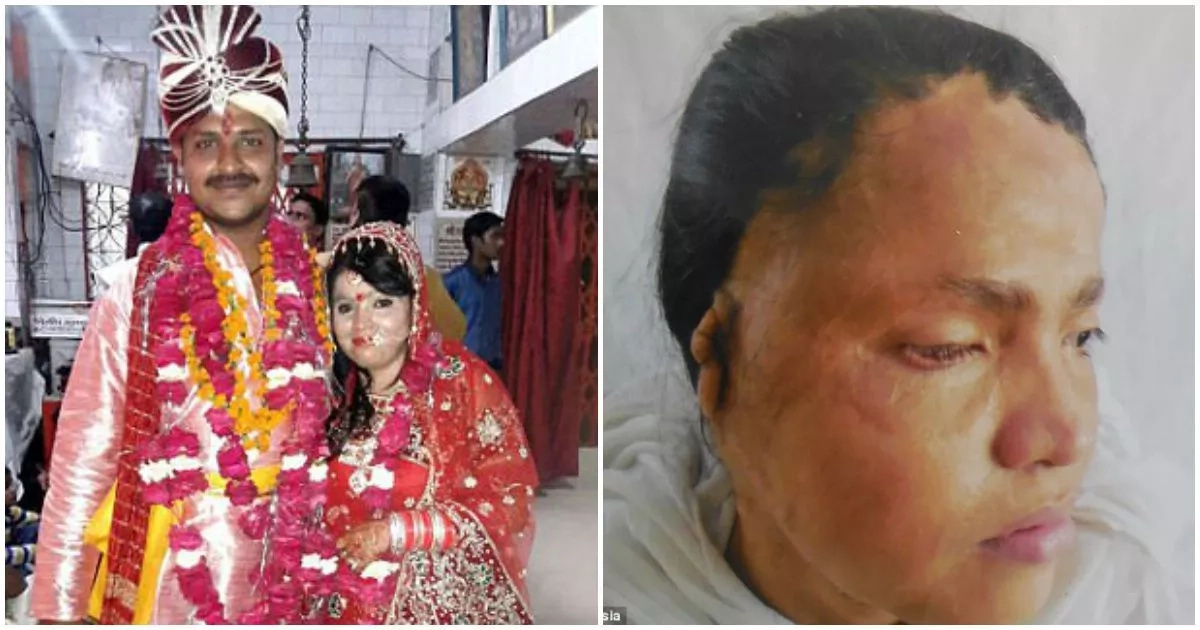 26-year-old acid survivor gets married to the man of her dreams (photos)
