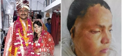 Woman, 26, who suffered ACID attack marries man who stood by her when her family disowned her (photos)