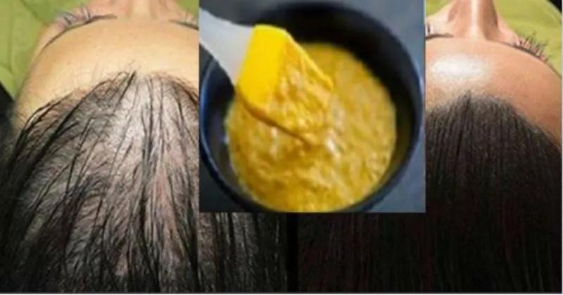 Recupera esa abundante cabellera con solo 3 ingredientes, tu cabello no volverá a caer
