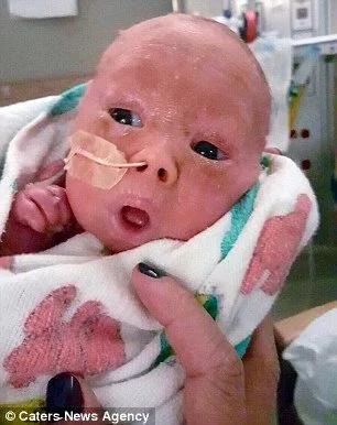Bebé sufre una terrible enfermedad en su piel