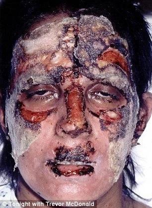Su cara quedó destrozada luego de terrible accidente