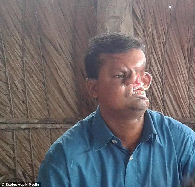 Tiger destroys fisherman's face after horrendous attack!