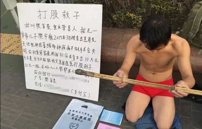 Desperate father begs passers-by to WHIP him to raise money for his son's treatment (photos)