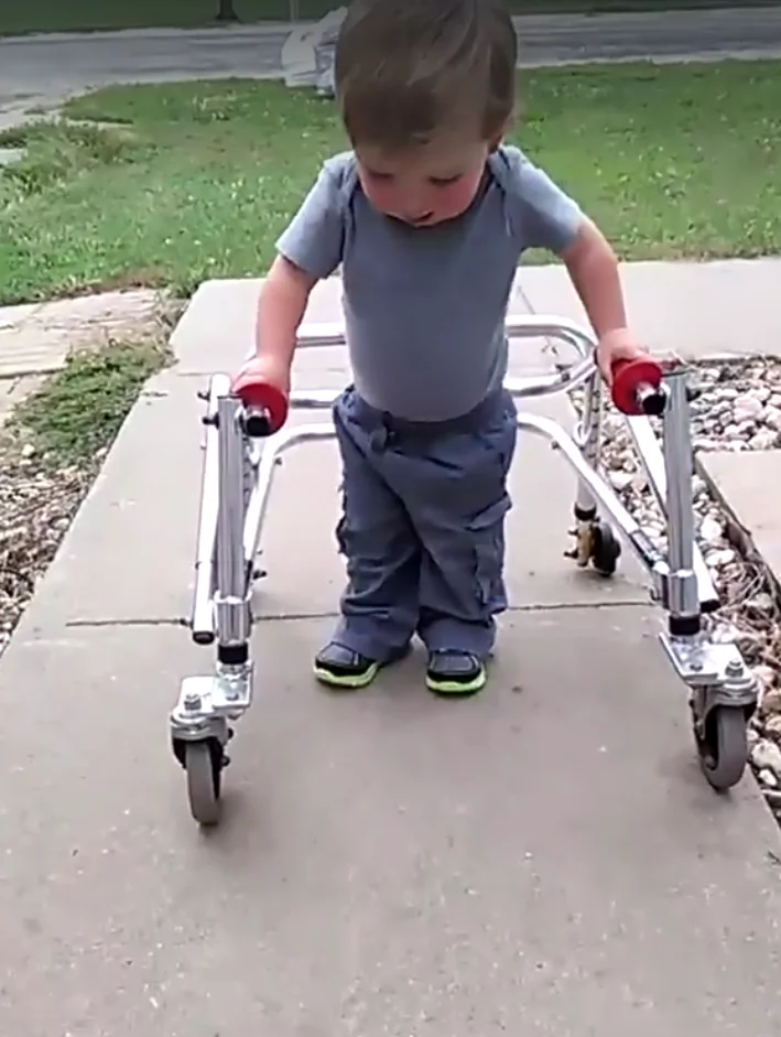 Precious! This sweet and determined two-year-old boy walks unassisted after multiple heart surgeries
