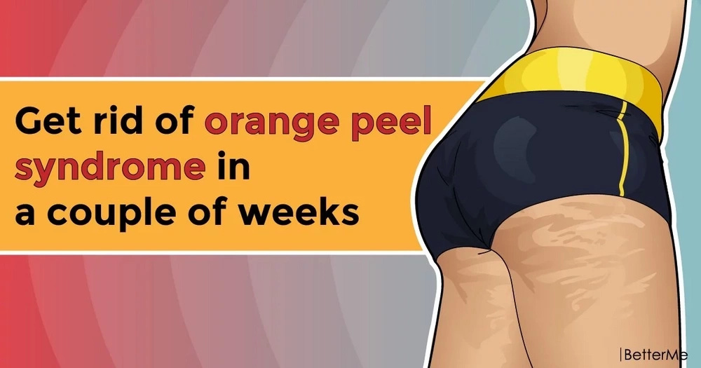Get rid of orange peel syndrome in a couple of weeks