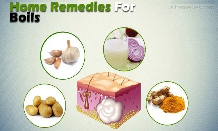 home remedies for boils on private area