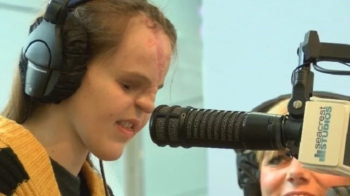 A girl was born without eyes nor nose. Doctors said they've never seen a case like this before!