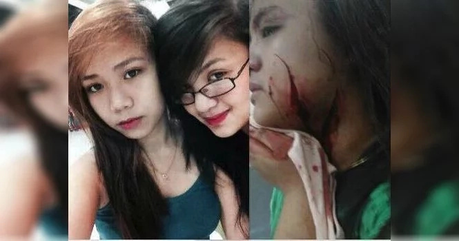 Young woman's face slashed after BF forever got jealous