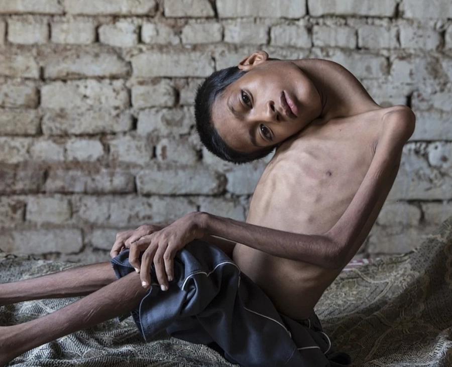 Good Samaritan helps Indian boy with rare disease get surgery