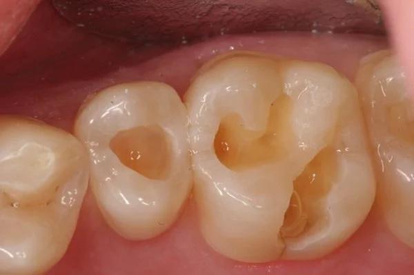 Estos remedios caseros sanarán y contrarrestarán la caída de dientes y las caries