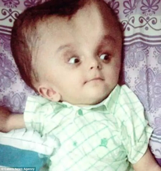 Toddler with 73cm brain receives lifesaving help from strangers
