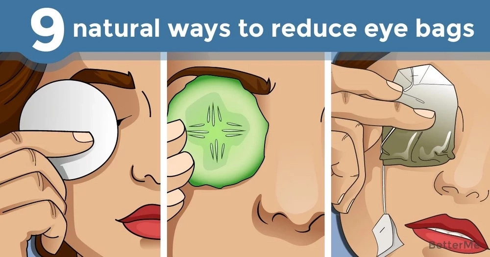 9 natural ways to reduce eye bags