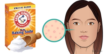 Beauty DIY With Baking Soda: Spot Treatment For Acne ScR and Dark Sport Using