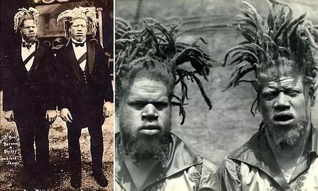 The true story of two albino brothers cruelly sold to a circus in 1899