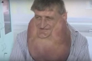 Man Notices His Jaw Is Growing In A Strange Way. 25 Years Later, He Looks Drastically Different