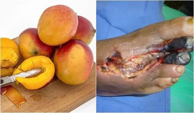 Necesitamos hablar del mango, podría salvarte de terribles padecimientos