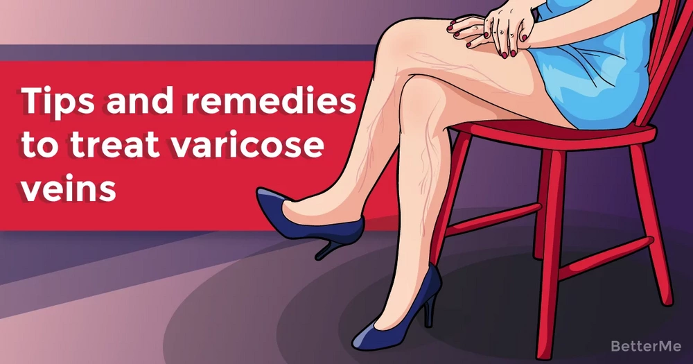 Tips and remedies to treat varicose veins