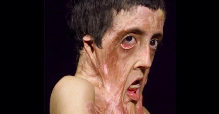 What Surgeon Did To This Girl Makes Her Unrecognizable For Everybody! (Photo)