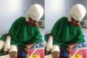 Brave Kiambu boy burnt badly while saving his five-year-old from a house fire, details