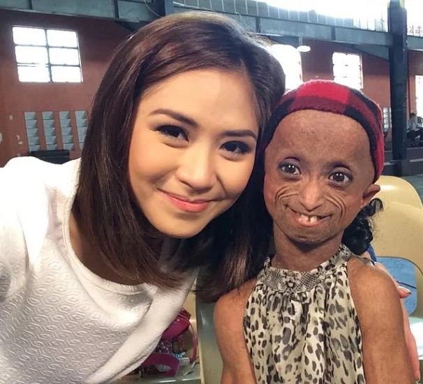Filipina girl with aging disease dies at the age of 19