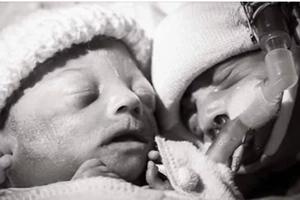 La conmovedora imagen de hermanos gemelos, horas después de que uno falleciera