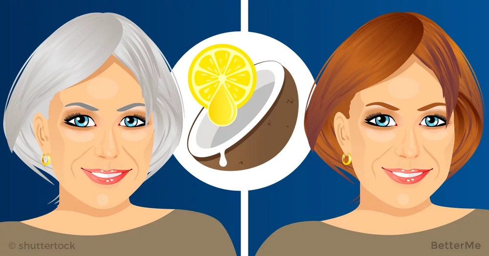 Lemon juice and coconut oil mix can help you avoid gray hair