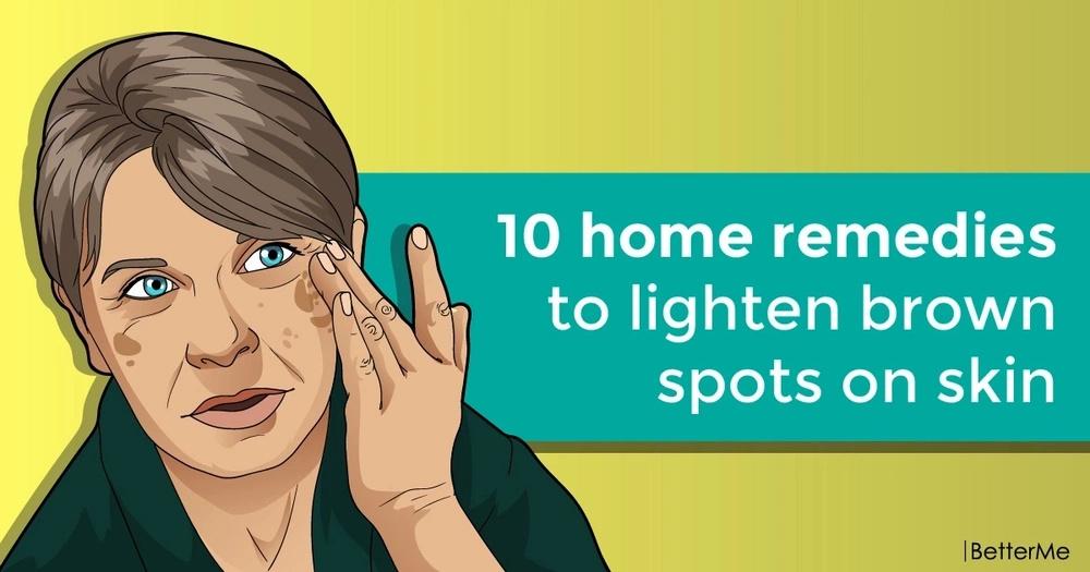 10 home remedies to lighten brown spots on skin