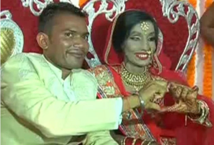 Woman whose face was totally burned in acid attack gets married