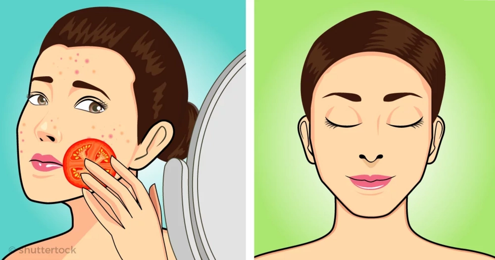 7 masks that can help you reduce scars