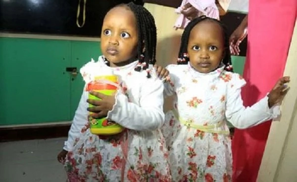 After 1000 days in hospital, separated twins finally walk out (photos)