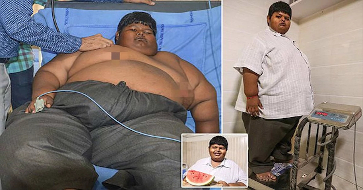 Constantly hungry! Meet 15-year-old boy who eats as 10 people and weighed 150 KILOS (photos)
