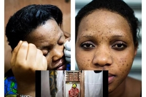 Man threatens his wife with divorce as she refuses to stop BLEACHING her skin (photos)