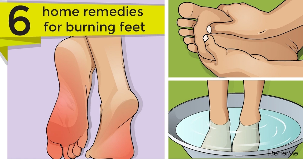 6 home remedies for burning feet