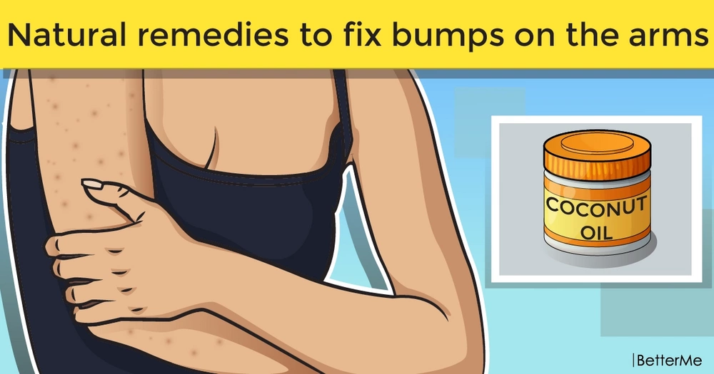 Natural remedies to fix bumps on the arms