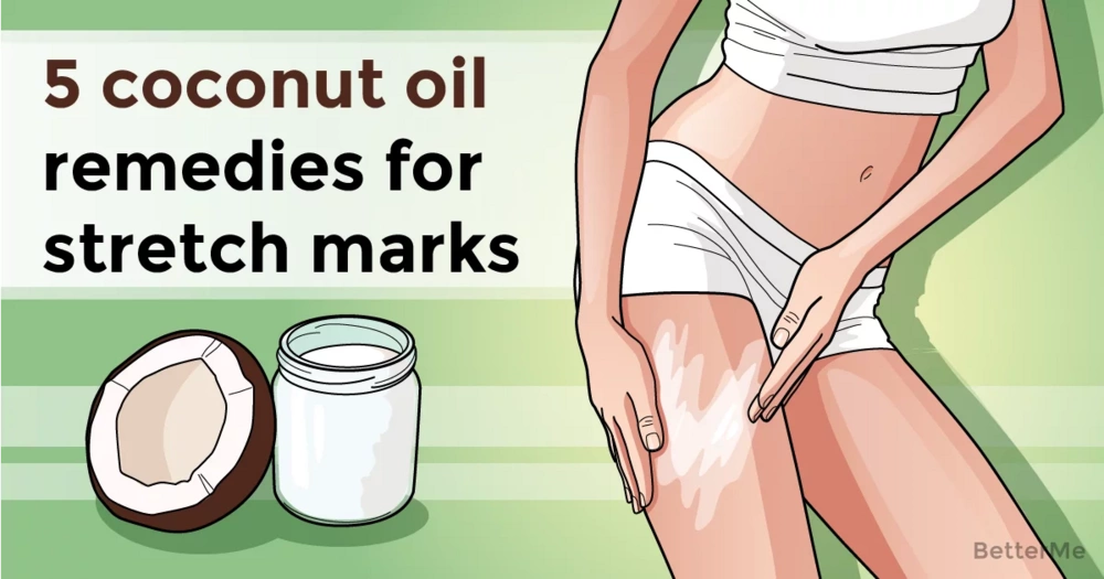 5 coconut oil remedies for stretch marks