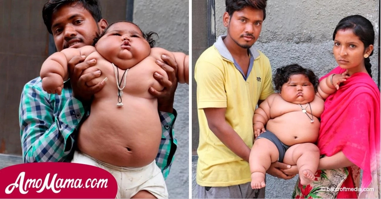 The 8-Month-Old Girl Weighs 17 Kilograms And Continues To Rapidly Gain Weight...