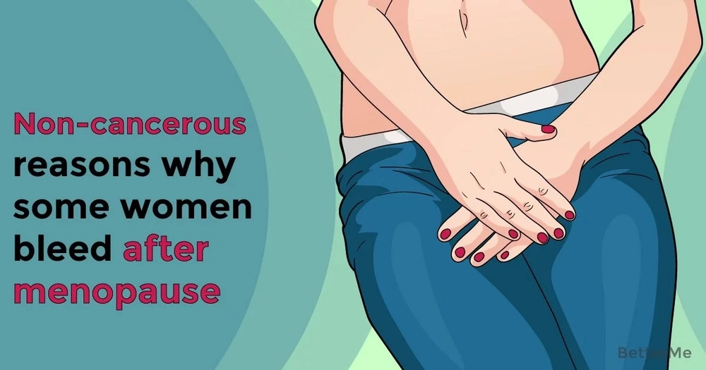 Non-cancerous reasons why some women bleed after menopause