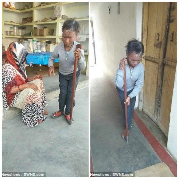 Snake-girl expelled from school for shedding her SKIN every 6 weeks (photos)