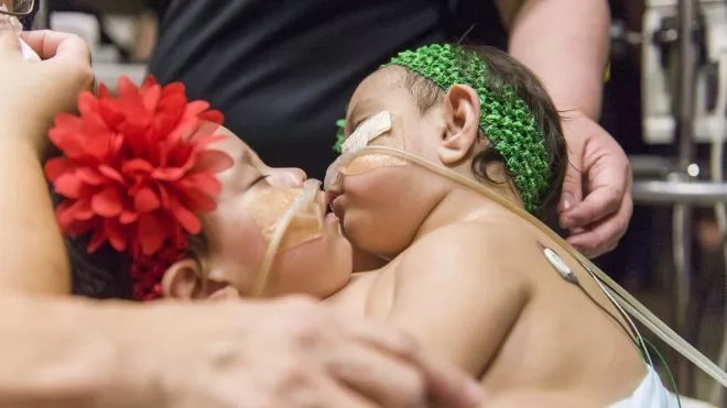 WATCH 10-month-old conjoined twins successfully separated in Texas