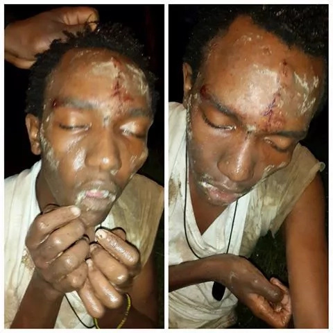 Photo: Kenyan man drugged and left for the dead