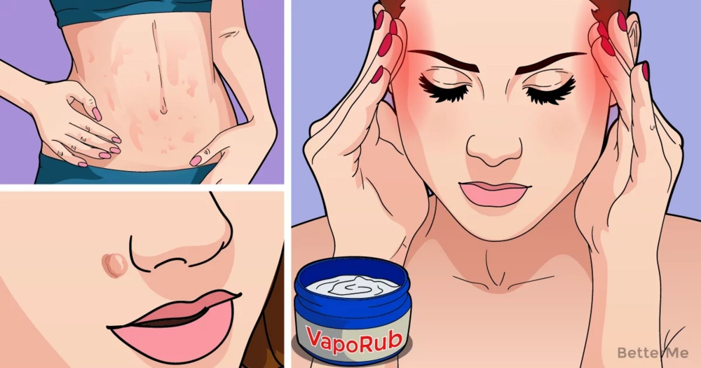 Every woman should know these 15 tricks with Vicks VapoRub