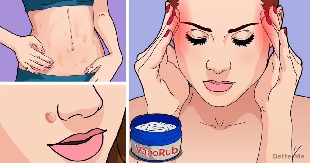 Every woman should know these 15 tricks with Vicks VapoRub