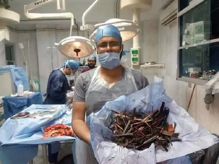 Woman suffers severe abdominal pain. This is what doctors found inside her stomach!