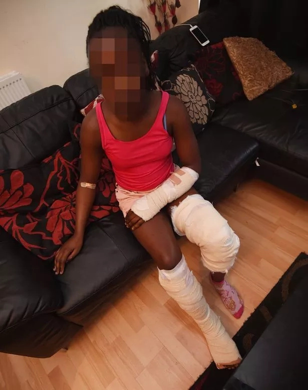 Brave girl, 11, tells horror story of how she was SAVAGED by neighbour's dog (photos)