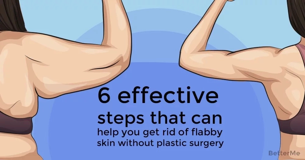 6 effective steps that can help you get rid of flabby skin without plastic surgery